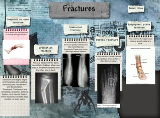 Fractures-Amber Shue